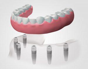 implantes dentales en Terrassa