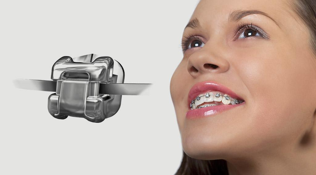 ortodoncia sistema Damon en Terrassa