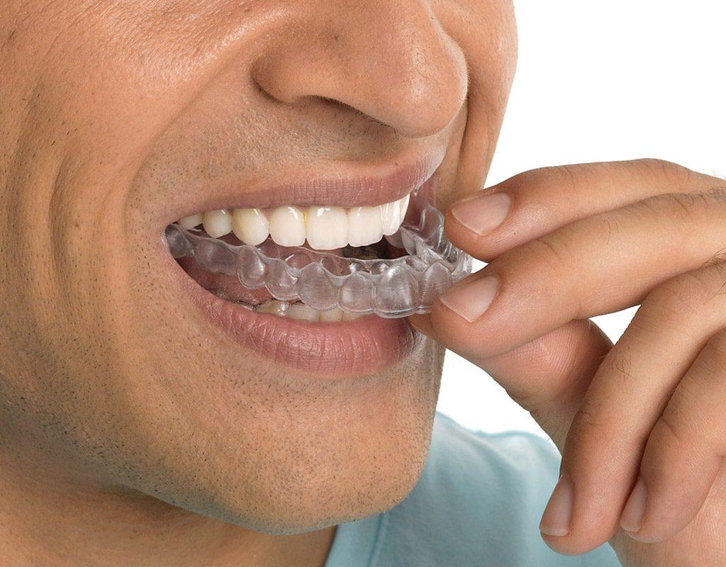 ortodoncia invisible invisalign en Terrassa