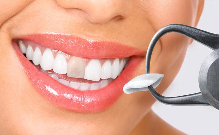 carillas dentales en Terrassa