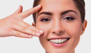ortodoncia en Terrassa