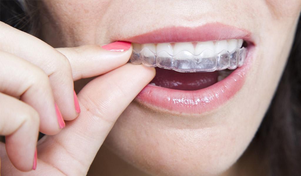ortodoncia invisalign en Terrassa